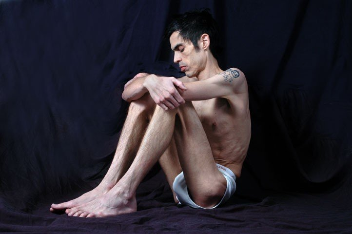 Suffering in Silence: Addressing Male Eating Disorders